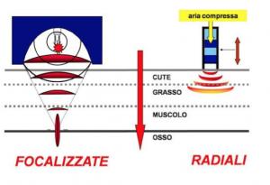 onde d'urto radiali e focalizzate