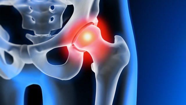 Infiltrazione ecoguidata dell'anca
